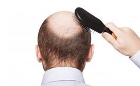 男人脱发是什么原因引起的 男人脱发原因及治疗方法