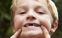 儿童龋齿影响换牙吗 儿童龋齿息肉怎么治疗