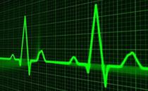 心电图是检查什么的 心电图多少钱一次